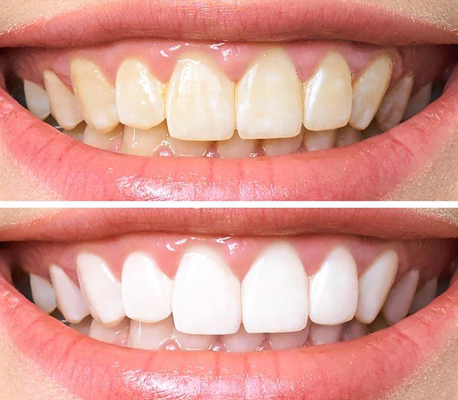 Cosmetic Dentistry Roger Sharpe Dental Coffs Harbour